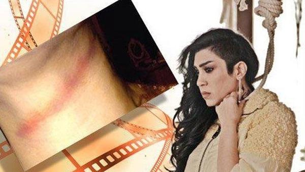 ممثلة بحرينية تنجو الموت خلال