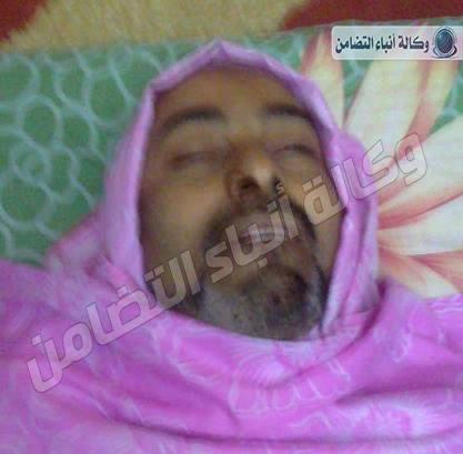 مصدر طبي: جثمان المسماري مستشفى