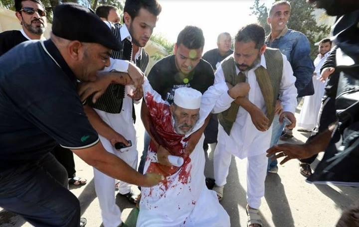 ليبيا مليشيات تقتل متظاهرين مسلحين